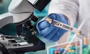 Covid-19 tesztelés